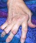 rheumatoid arhtritis hand