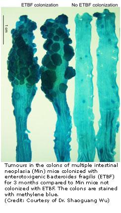 colonic tumours