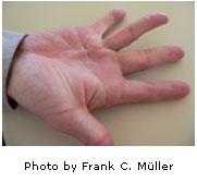 Dupuytren Hand