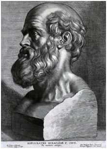 Hippocrates (460 to 370 BC) was the first person to describe stroke-like symptoms. He reported that unaccustomed attacks of numbness and anaesthesia are signs of impending apoplexy most likely referring to transient ischemic attacks.  Image: Wikipedia