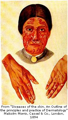 Lupus erythmatosus