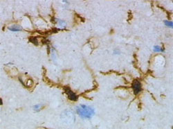 Microglial cells (stained brown) Image: Wikimedia