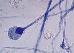mucor sp. sporangium