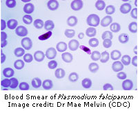 blood smear of plasmodium falciparum