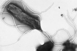 H Pylori electron micrograph
