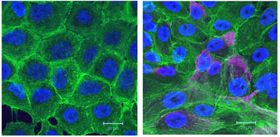 Three colour confocal images of cells cultured on crosslinked gelatin showing the distribution of DAPI (nuclei, blue), phalloidin (F-act, green), and vimentin (magenta) in control (left) versus Syk siRNA transfected MCF10A cells (right). Scale bars = 20 µm. Image: PLoSone